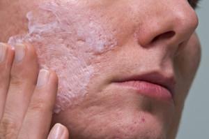 Narben Entfernen Gesicht