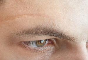 kleiner Narben Gesicht